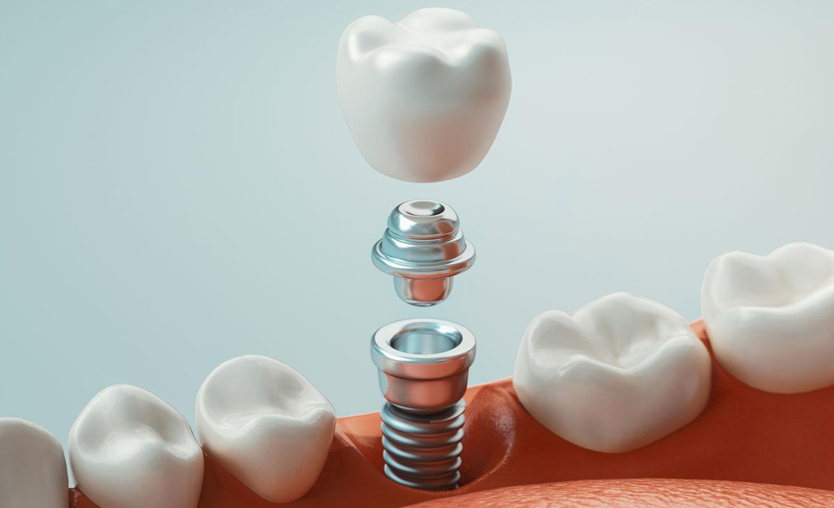 корейские зубные импланты